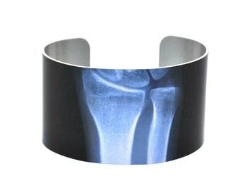 X-Ray of Wrist Aluminium Cuff