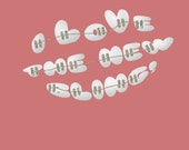 Congratulations on Getting Braces Printable Card - I Love The New Bling