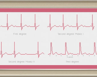 Heart block EKG rhythms: nerdy cross-stitch pattern