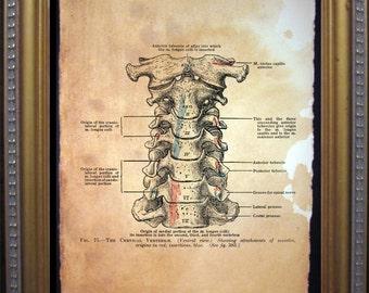 Cervical Vertebrae Diagram Art Print - Vintage Anatomy Art Print- Vintage Art Print on Tea Stained Paper