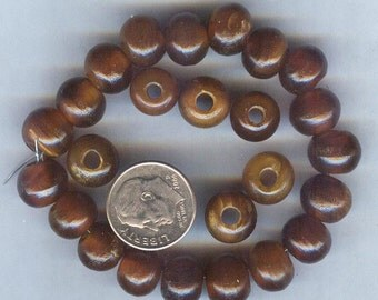NEW 10mm Wonderful Golden Horn Round Beads 25pcs
