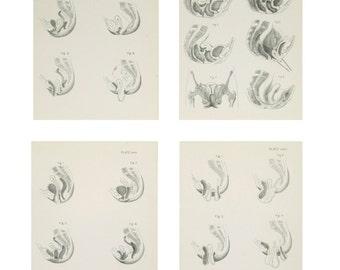 Anatomical Prints - Female Pelvic Organs - 1880's Medical Drawings - Plates - Engravings - Set of 4