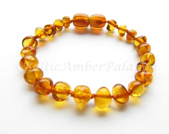 Baltic Amber Baby Teething Bracelet/Anklet, Rounded Cognac Color Beads