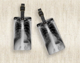 Personalized Luggage Tags Xray X ray Chart Metal Tags Luggage Tag Set Personalized