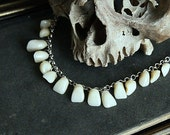 Silver Adjustable Necklace Collier »Bare your teeth« With Medical Acrylic Teeth