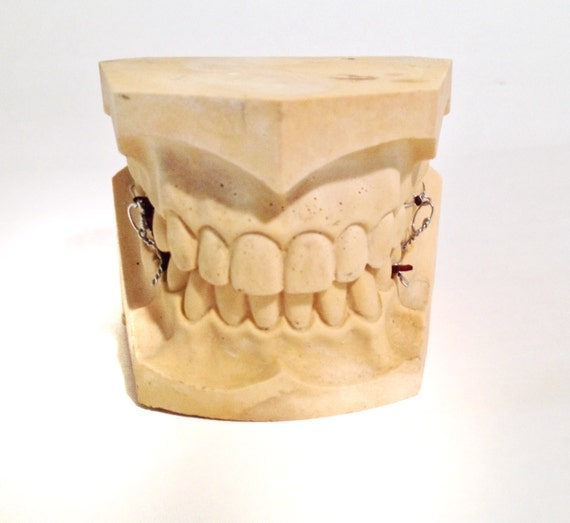 Vintage Plaster Dental Mold Teeth
