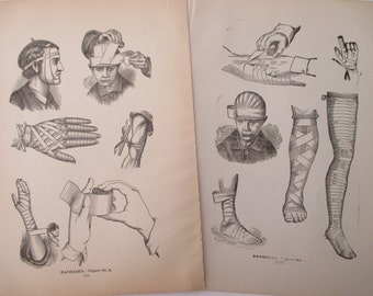 original page - 1901 MEDICAL CHART from antique medical book - bandages