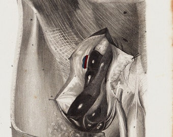1835 Antique ANATOMY print, fine anatomy lithograph of male groin area dissection, penis