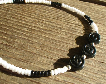 Black and White Stretch Anklets