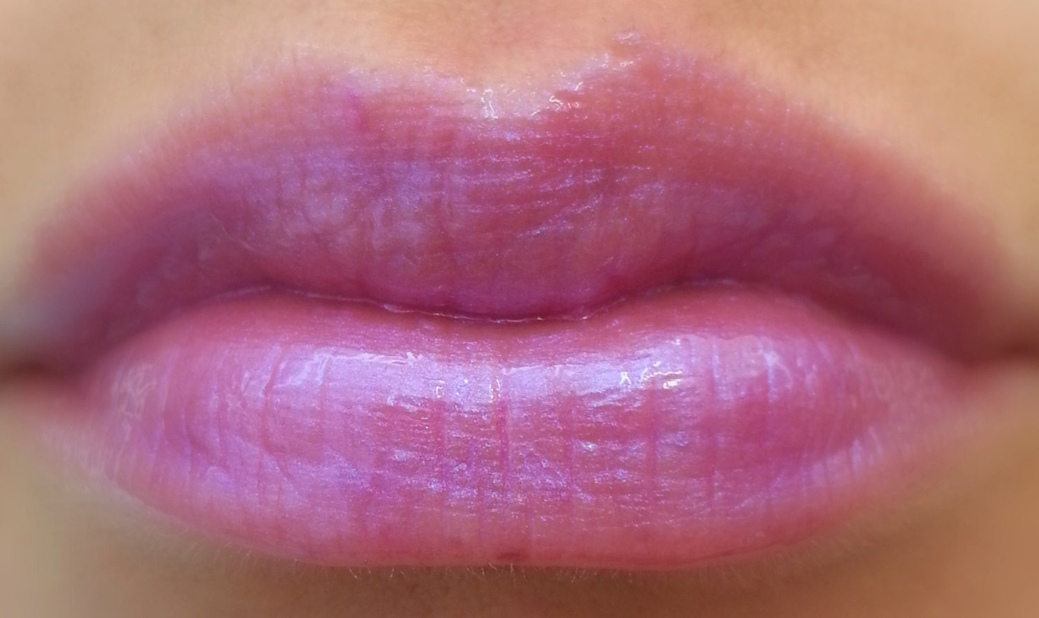 100+ Bump On Upper Lip Line – yasminroohi