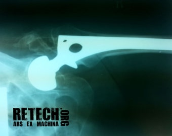 Vintage Medical X-Rays - Pins and Needles  X-Rays - XRay - Halloween Decor - Vintage Halloween - Halloween Supplies - Skeleton - Skull