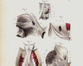 1843 Antique ANATOMY print,  abdominal muscles, anus, perineum,, original antique 170 years old print