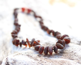 Raw Amber Teething Necklace Maximum Pain Relief By Gumstone