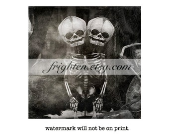 Black and White Conjoined Skeleton Photography Print, Dark Art, Halloween Decor, Oddities, Two Headed Twins