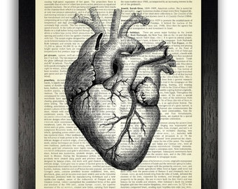 Black Heart Anatomy Art Print, Cool Gothic Decal, Anatomical Heart Illustration, Vintage Dictionary Print, Anatomy Poster, Goth Wall Decor