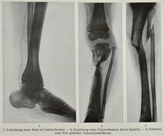 X-Rays print. Anatomy. Old book plate, 1904. Antique illustration. 110 years lithograph. 9'6 x 6'2 inches.