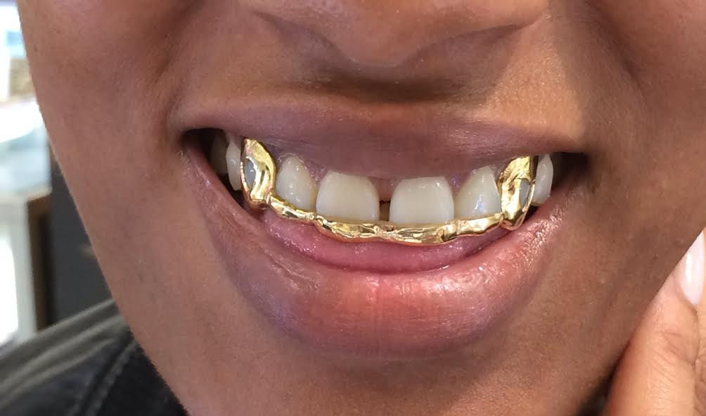 Images of Permanent Silver Tooth Caps - #rock-cafe