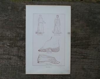 1893 - Foot Binding Chinese - Antique Anatomical Print