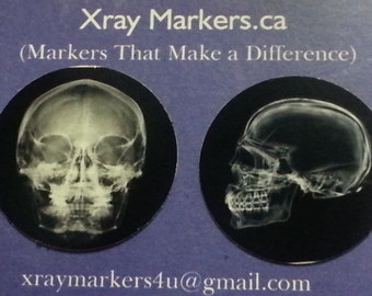 Xray Markers that Make the Difference