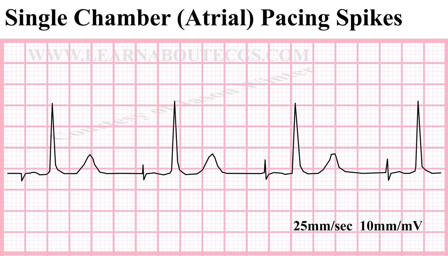 "atrial fibrillation research paper Atrial fibrillation (often called ""a-fib"" or af) is the most common type of abnormal heartbeat in a normal heartbeat, the four chambers of the heart work in a."