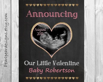Valentine ultrasound pregnancy announcement - Announcing Our Little Valentine chalkboard printable 8x10 or 11x14 file