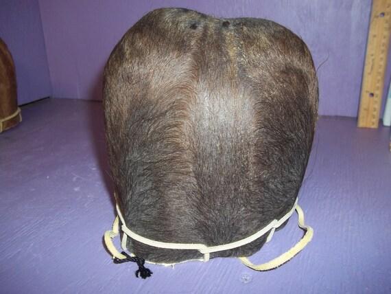 Ball sac anatomy