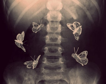 X Ray Photograph, Stomach, Butterflies, Fine Art, Bones, Skeleton, Photo, Print, Dark, Medical, Doctor, Surreal, Home Decor, Art, Halloween