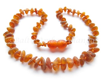 Baltic Amber Teething Necklace, Raw Unpolished Cognac Color Beads