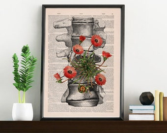 Summer Sale Human anatomy vertebrae poster print - Wall decor, anatomical art , Wall hanging art. Unique Gift- SKA097