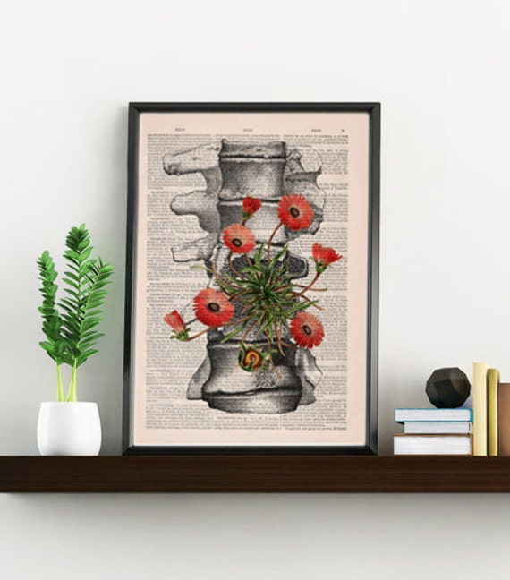 Spring Sale Human anatomy vertebrae poster print - Wall decor, anatomical art , Wall hanging art. Unique Gift- BPSK097