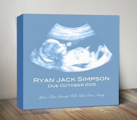 Just Born Baby Gift Ideas : Ultrasound canvas sonogram art print baby shower gift