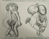 Antique 1899 General Pathology by Dr. Ernst Ziegler Deformities Freaks Human Anatomy Diagrams Oddity