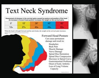 """Text Neck Syndrome Poster 18"""" X 24"""""""