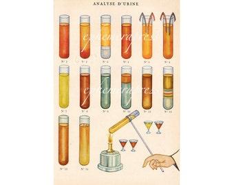 URINALYSIS glorious science medical print - urine bathroom - URINE ANALYSIS