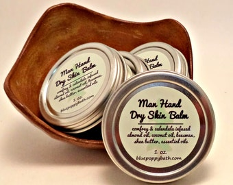 Man Hand Dry Skin Balm, Mens Hand Repair with Calendula Infused Oil, Salve for Mens Rough Chapped Skin, Herbal Ointment, Fathers Day Gift
