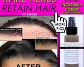 Leahs BEST Herbal Hair Retention Treatment, Hair Growth Support, and Anti Dandruff Product
