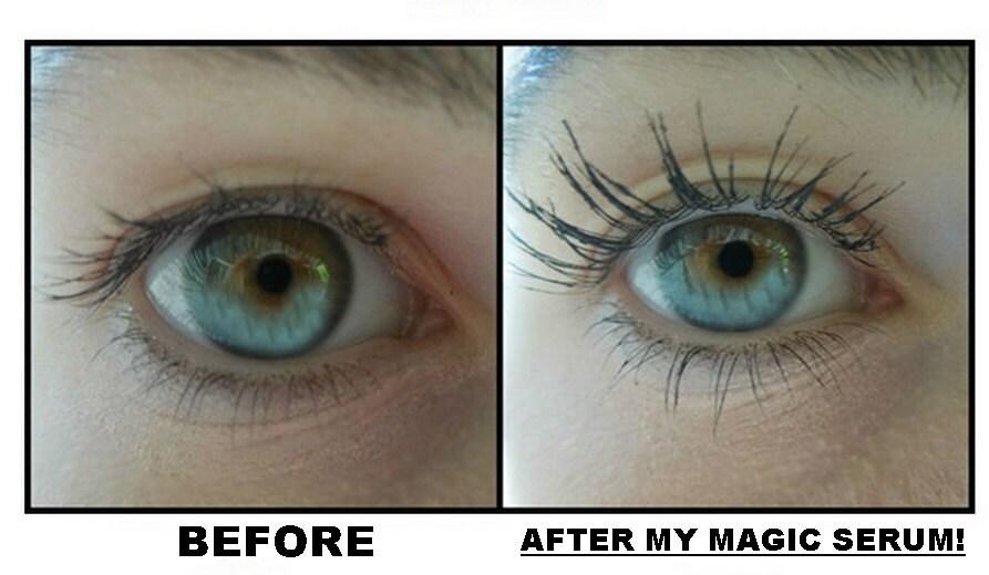 Eyelash And Eyebrow Growth Serum And Makeup Remover Also