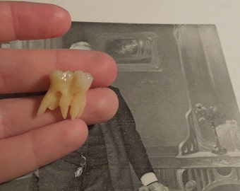 Tooth oddity-Connected molars with weird rooth