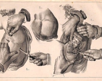 Surgery, Medical Print, Surgical, Anatomy, 19th Century, Antique Print, 1846