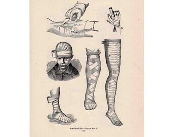 1903 HUMAN MEDICAL ANATOMY print original antique lithgraph of bandages