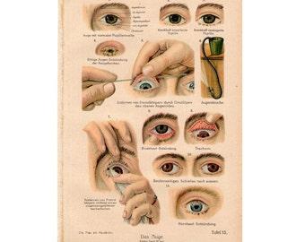 1921 antique EYE ANATOMY and DISEASE human anatomy original antique medical print