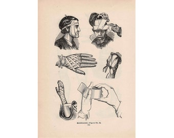 1903 HUMAN MEDICAL ANATOMY print original antique lithograph of bandages wound care