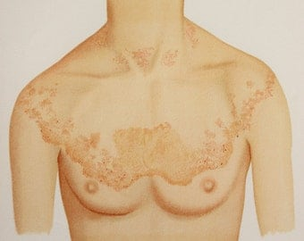 1902 Antique Medical Print in Colour - Skin Diseases, Rashes, Ulcers, Chest, Anatomical Print