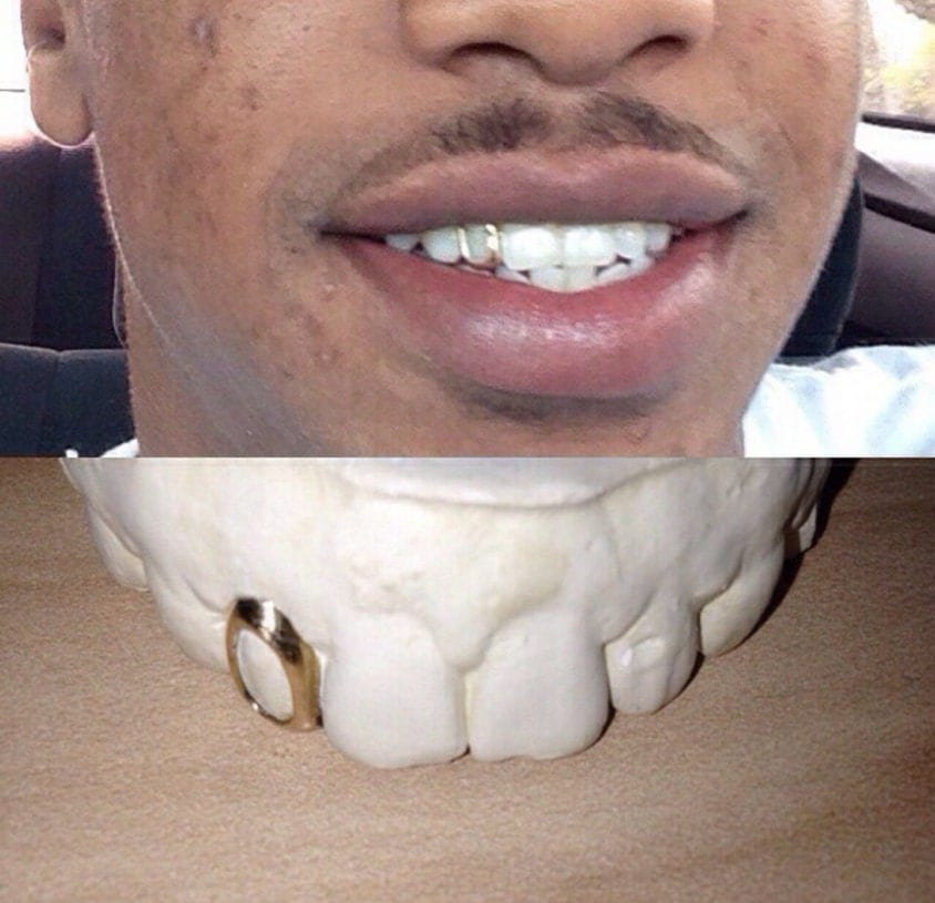 1 10k gold tooth