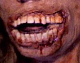 Zombie mouth/teeth prosthetic