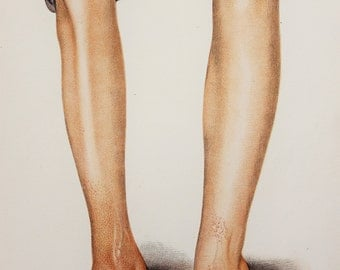 1902 Antique Medical Print in Colour - Skin Diseases, Leprosy, Feet, Anatomical Print