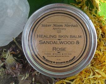 Healing Skin Balm - all purpose healing balm-  Rashes, Eczema, Dry Skin, Wounds, Bites, Burns, Itching - Sandalwood & Rose