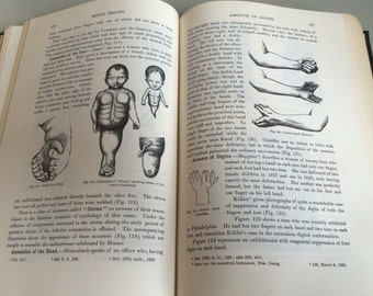 Anomolies and Curiosities of Medicine 1962 3rd edition Julian Press morbid anatomy creepy