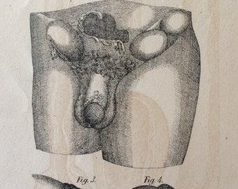 Antique Engraving Anatomy PENIS TESTICLE Disease Scrotum Bookplate 18th 19th Century