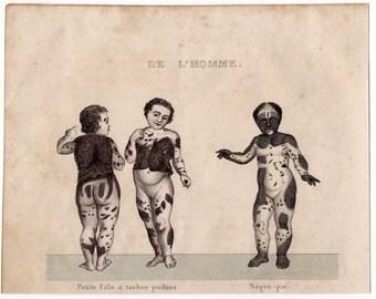 1837 SKIN ANOMALY RARE original antique hand colored medical oddity disease anatomy engraving - piebald
